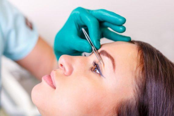 Tot ce trebuie sa stiti despre blefaroplastia cu laser?